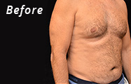 Abdominal Etching Before Plastic Surgery Photo Maryland