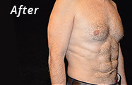 Abdominal Etching After Plastic Surgery Photo Maryland
