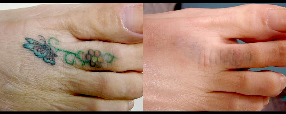 Tattoo Removal Before & After Patient #796