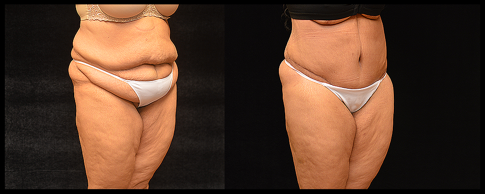 Lower Body Lift Before & After Patient #433