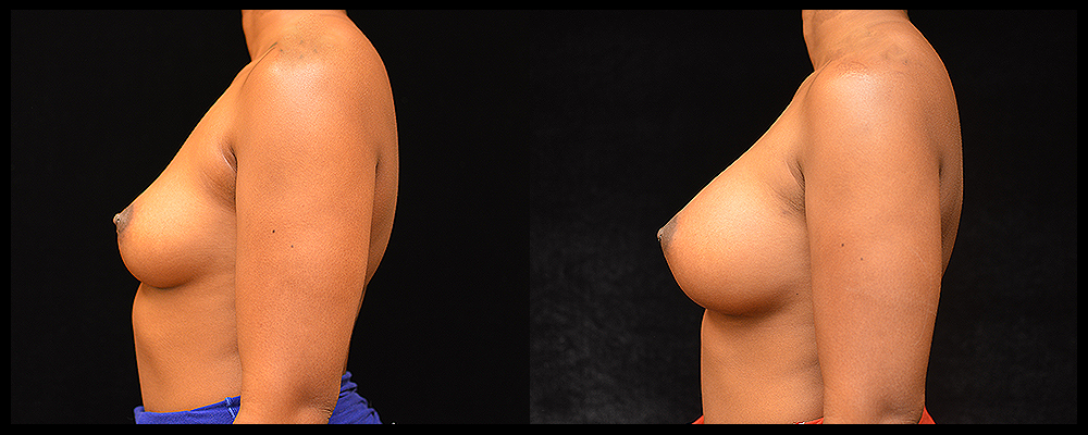 Breast Augmentation Before & After Patient #1013