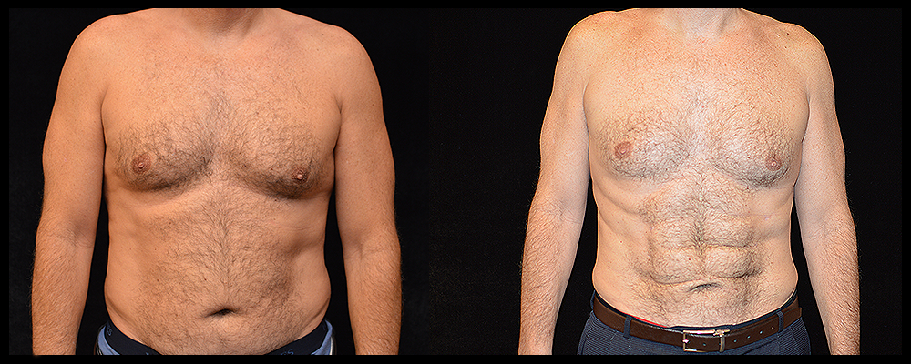 Six Pack Abs Before & After Patient #1153