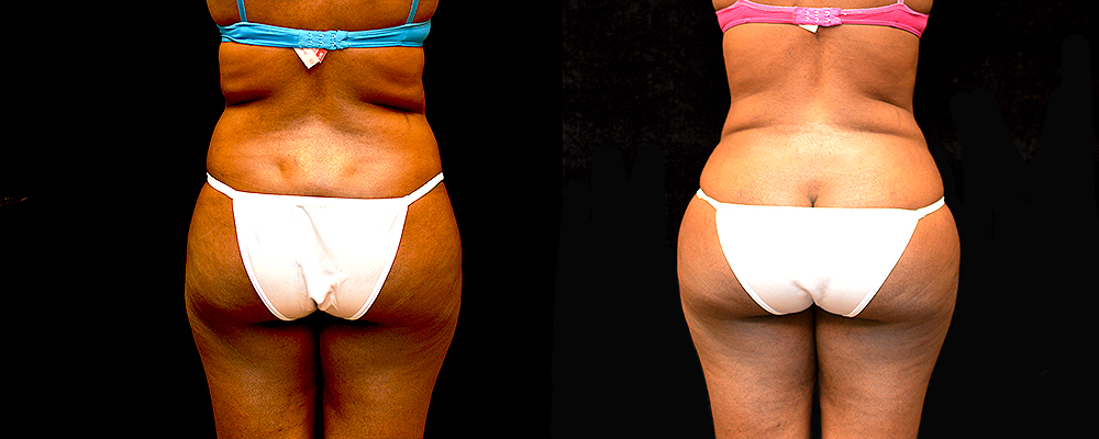 Liposuction Before & After Patient #410