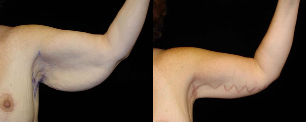 Arm Lift Before & After Patient #261