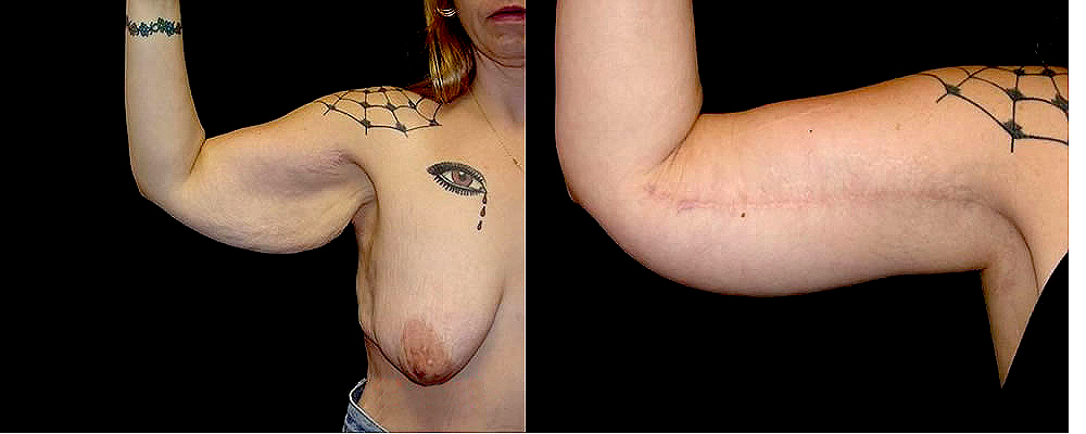 Arm Lift Before & After Patient #254