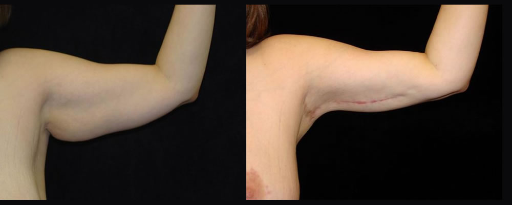 Arm Lift Before & After Patient #245