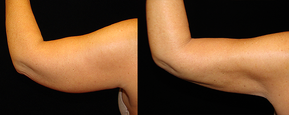 Arm Lift Before & After Patient #239