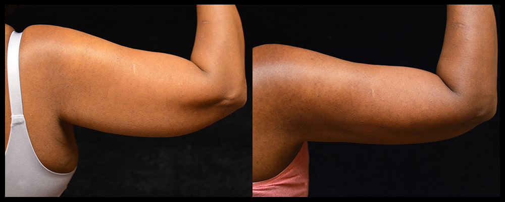 Arm Lift Before & After Patient #236