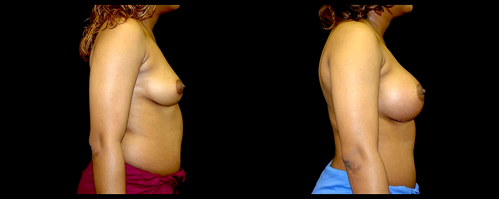Breast Augmentation Before & After Patient #988