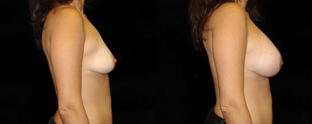 Breast Augmentation Before & After Patient #952