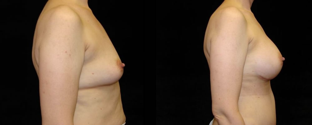 Breast Augmentation Before & After Patient #948