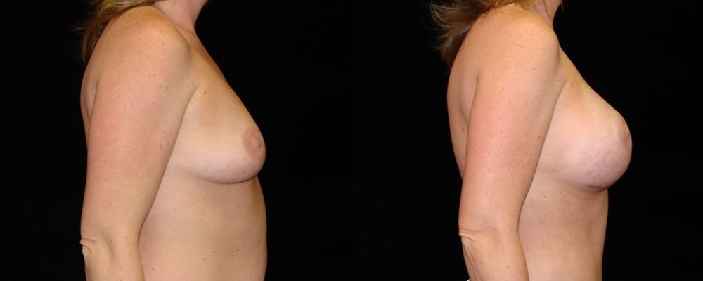 Breast Augmentation Before & After Patient #944