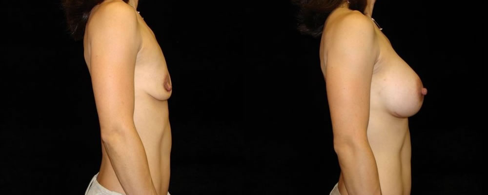 Breast Augmentation Before & After Patient #937