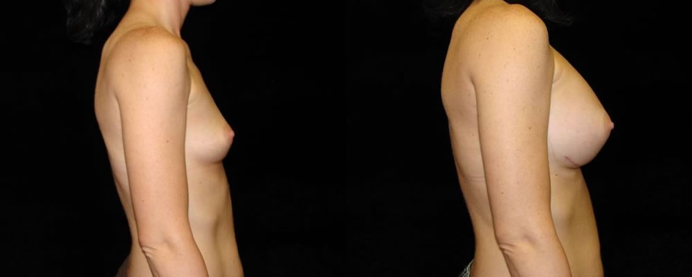 Breast Augmentation Before & After Patient #933