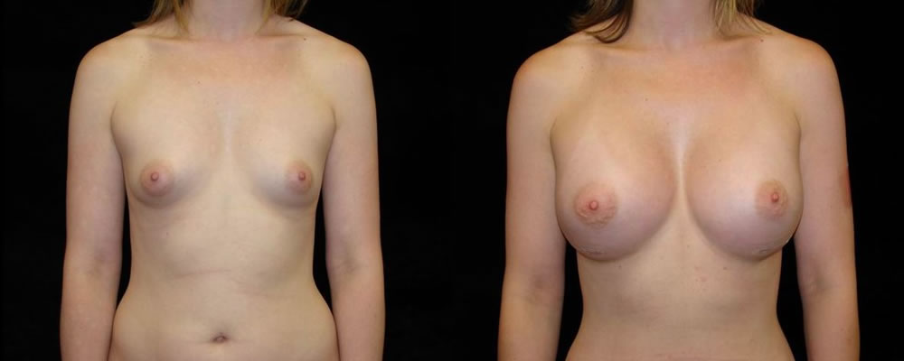 Breast Augmentation Before & After Patient #929