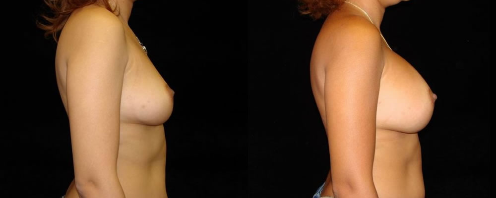 Breast Augmentation Before & After Patient #925
