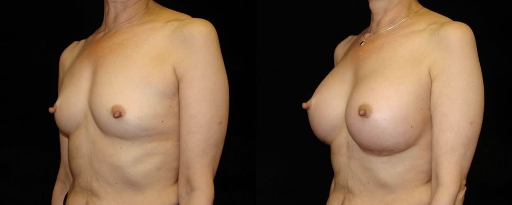 Breast Augmentation Before & After Patient #917