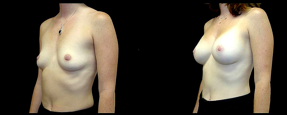 Breast Augmentation Before & After Patient #984