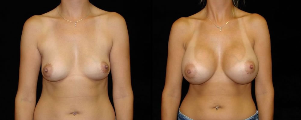 Breast Augmentation Before & After Patient #913