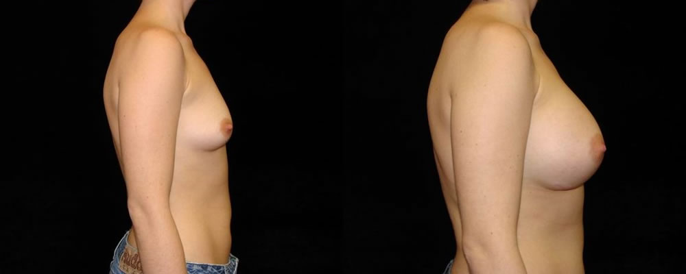 Breast Augmentation Before & After Patient #909