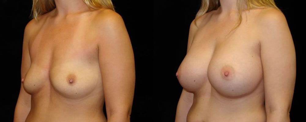 Breast Augmentation Before & After Patient #906