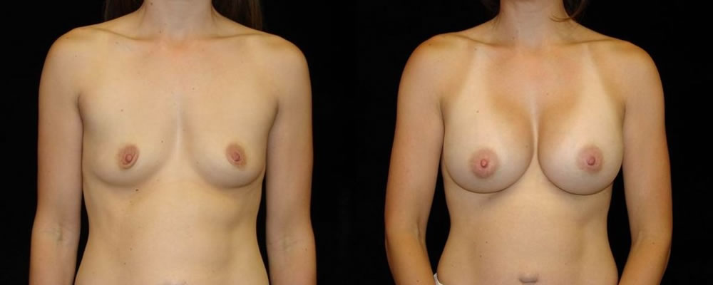 Breast Augmentation Before & After Patient #898