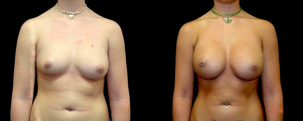 Breast Augmentation Before & After Patient #894