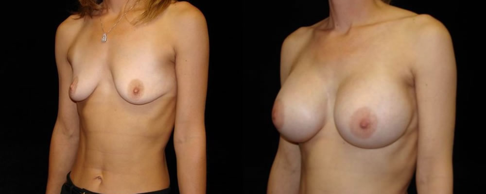 Breast Augmentation Before & After Patient #889