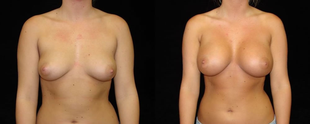 Breast Augmentation Before & After Patient #885