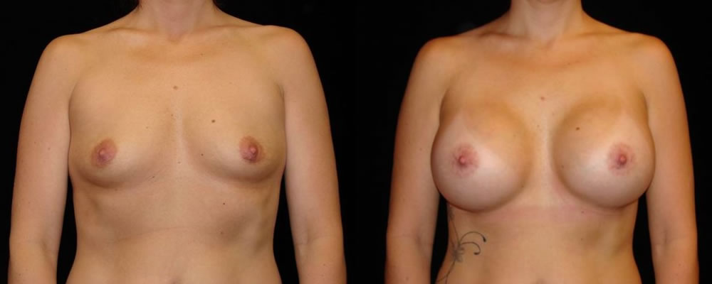 Breast Augmentation Before & After Patient #877