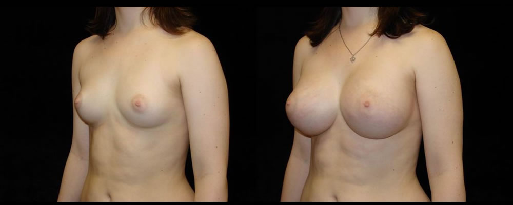 Breast Augmentation Before & After Patient #980