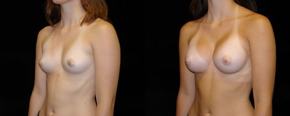 Breast Augmentation Before & After Patient #873