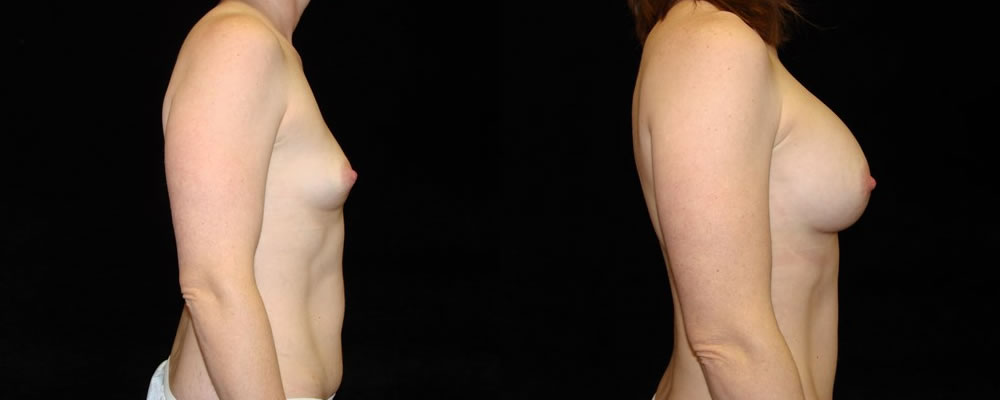 Breast Augmentation Before & After Patient #865
