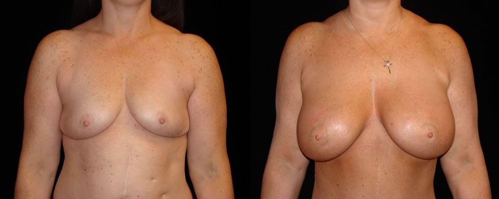 Breast Augmentation Before & After Patient #857