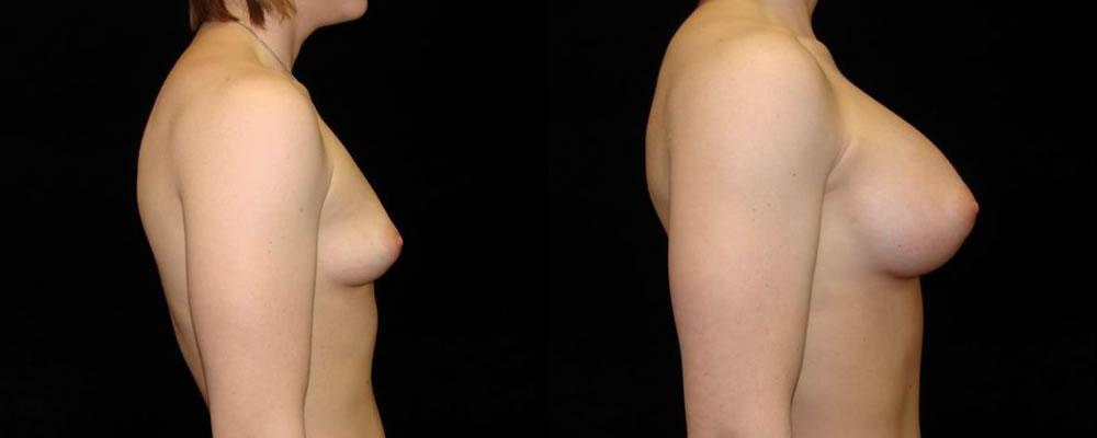 Breast Augmentation Before & After Patient #853
