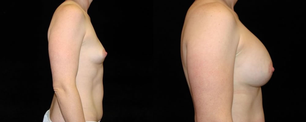 Breast Augmentation Before & After Patient #849
