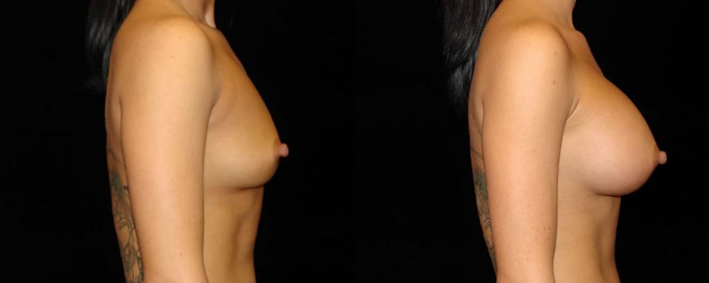 Breast Augmentation Before & After Patient #847