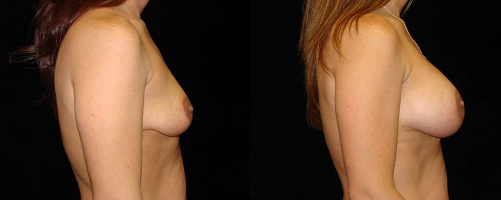 Breast Augmentation Before & After Patient #835