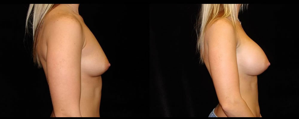 Breast Augmentation Before & After Patient #976