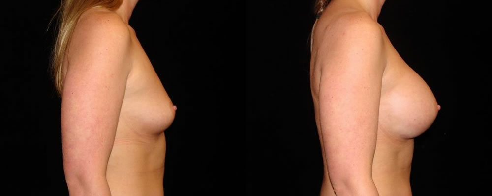 Breast Augmentation Before & After Patient #831