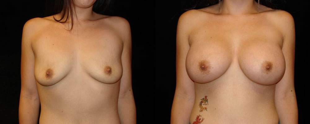 Breast Augmentation Before & After Patient #827