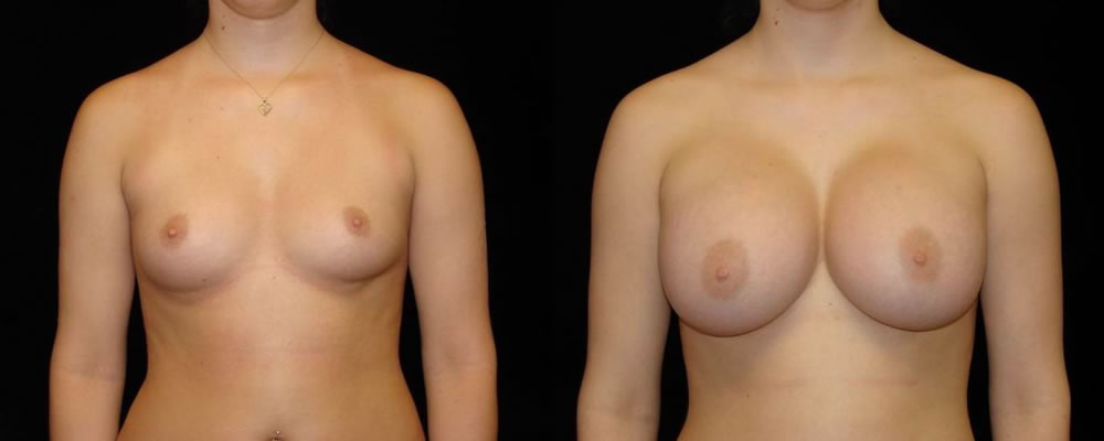 Breast Augmentation Before & After Patient #823