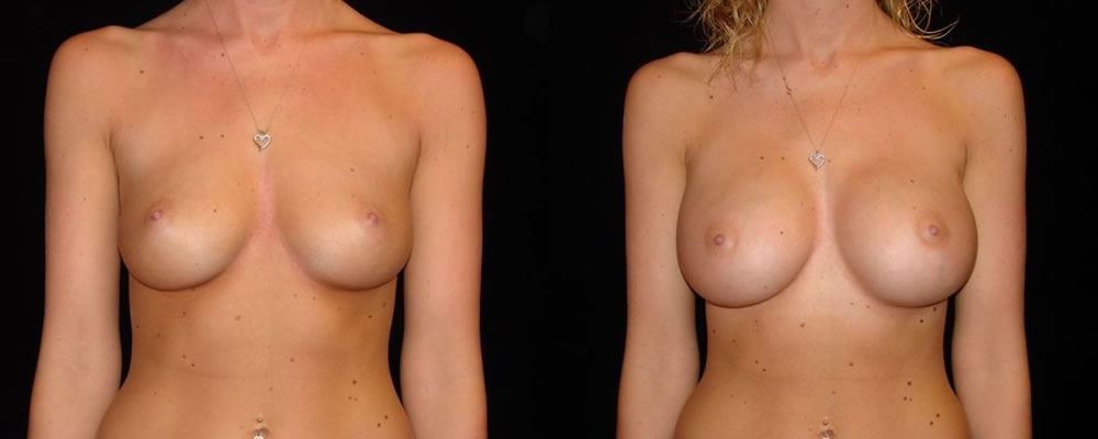 Breast Augmentation Before & After Patient #819