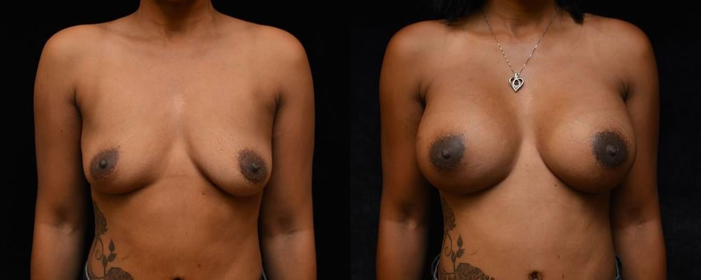 Breast Augmentation Before & After Patient #815