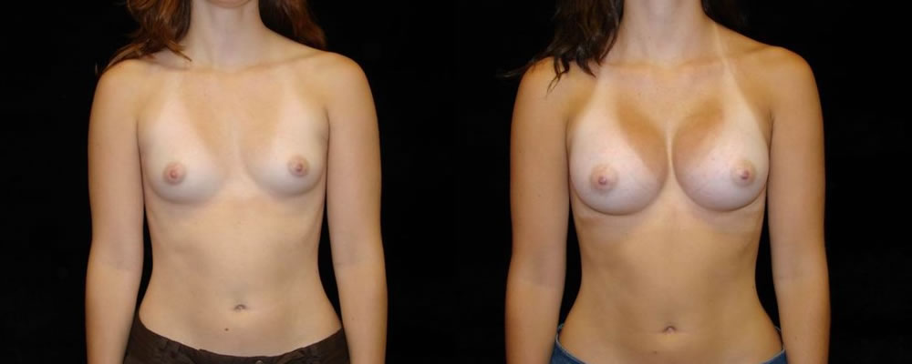 Breast Augmentation Before & After Patient #811