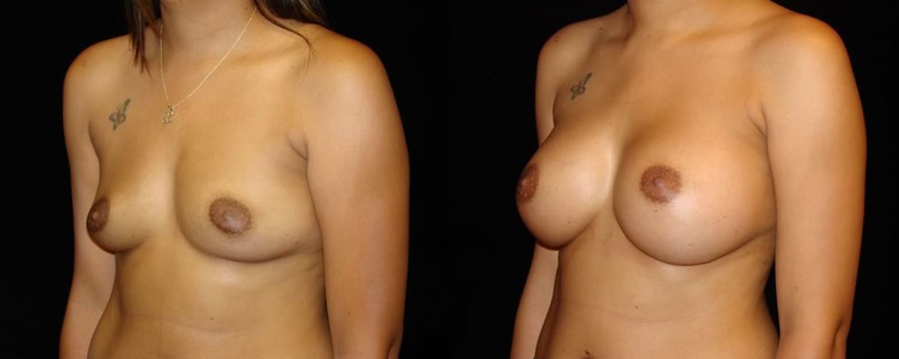 Breast Augmentation Before & After Patient #807