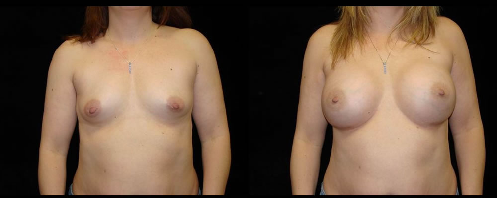 Breast Augmentation Before & After Patient #972