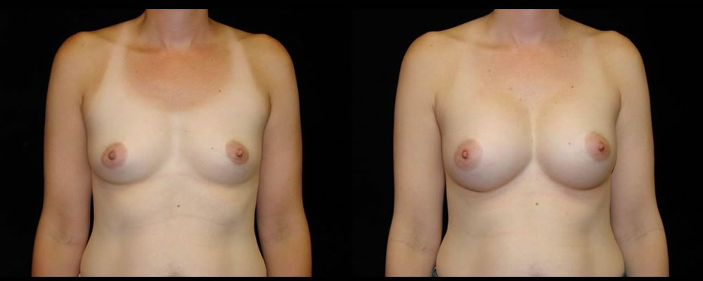 Breast Augmentation Before & After Patient #968