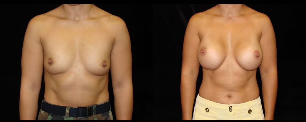 Breast Augmentation Before & After Patient #964