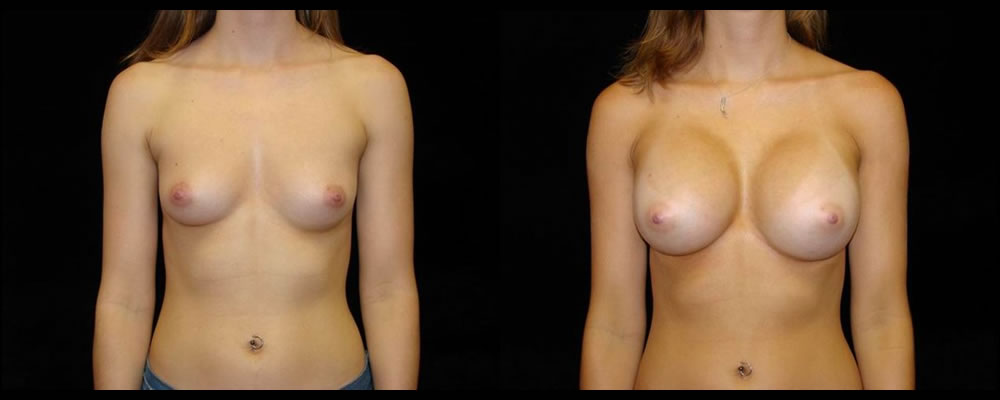 Breast Augmentation Before & After Patient #960